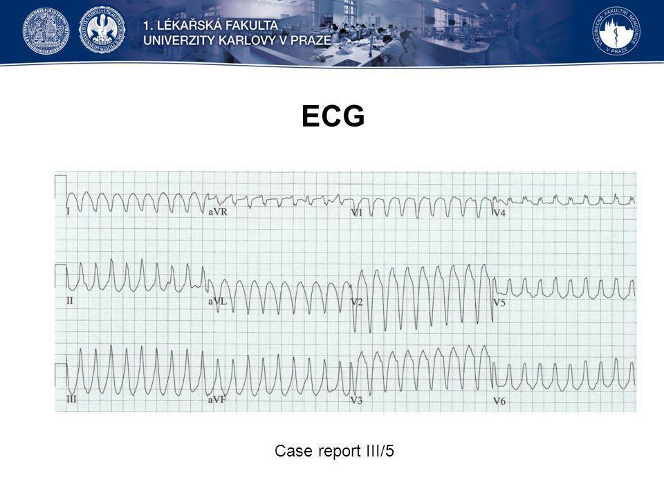 ECG Case report III/5