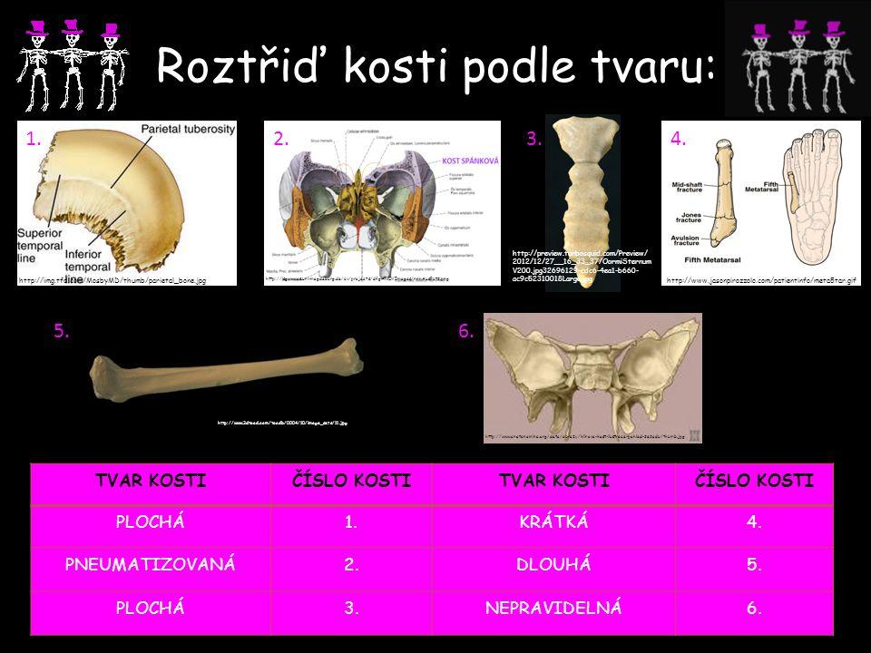 Roztřiď kosti podle tvaru: 1.2.3.4. 5.6. http://www.anatonomina.org/data/obrazy/klinova-kost-ilustrace-pohled-zezadu/thumb.jpg http://www.3dtoad.com/t
