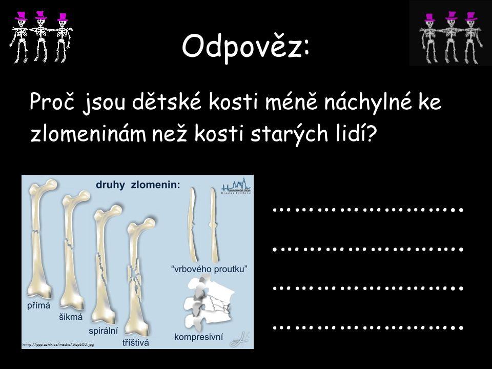 Odpověz: Proč jsou dětské kosti méně náchylné ke zlomeninám než kosti starých lidí? ……………………...……………………. …………………….. …………………….. http://ppp.zshk.cz/medi