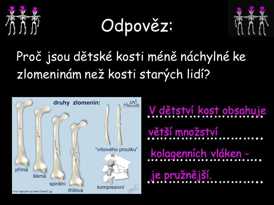 Odpověz: Proč jsou dětské kosti méně náchylné ke zlomeninám než kosti starých lidí?.…………………….....…………………….. ………………………...…………………….. http://ppp.zshk.cz/