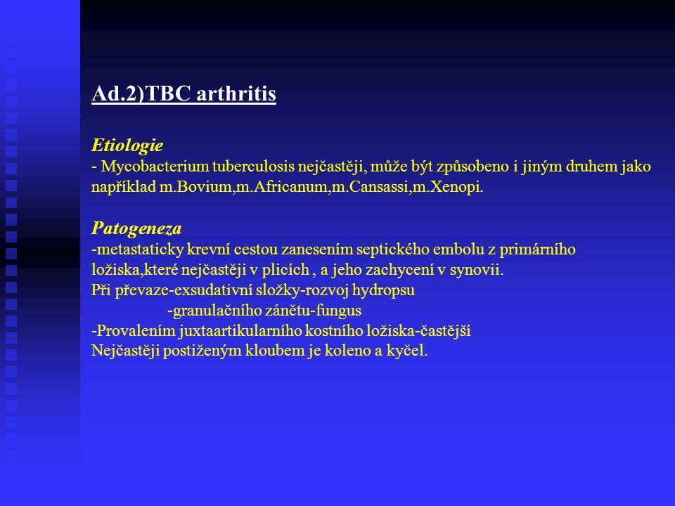 Ad.2)TBC arthritis Etiologie - Mycobacterium tuberculosis nejčastěji, může být způsobeno i jiným druhem jako například m.Bovium,m.Africanum,m.Cansassi,m.Xenopi.
