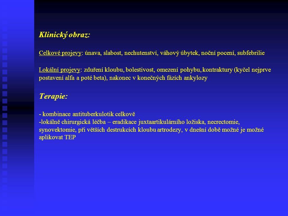 Klinický obraz: Celkové projevy: únava, slabost, nechutenství, váhový úbytek, noční pocení, subfebrilie Lokální projevy: zduření kloubu, bolestivost, omezení pohybu, kontraktury (kyčel nejprve postavení alfa a poté beta), nakonec v konečných fázích ankylozy Terapie: - kombinace antituberkulotik celkově -lokálně chirurgická léčba – eradikace juxtaartikulárního ložiska, necrectomie, synovektomie, při větších destrukcích kloubu artrodezy, v dnešní době možné je možné aplikovat TEP