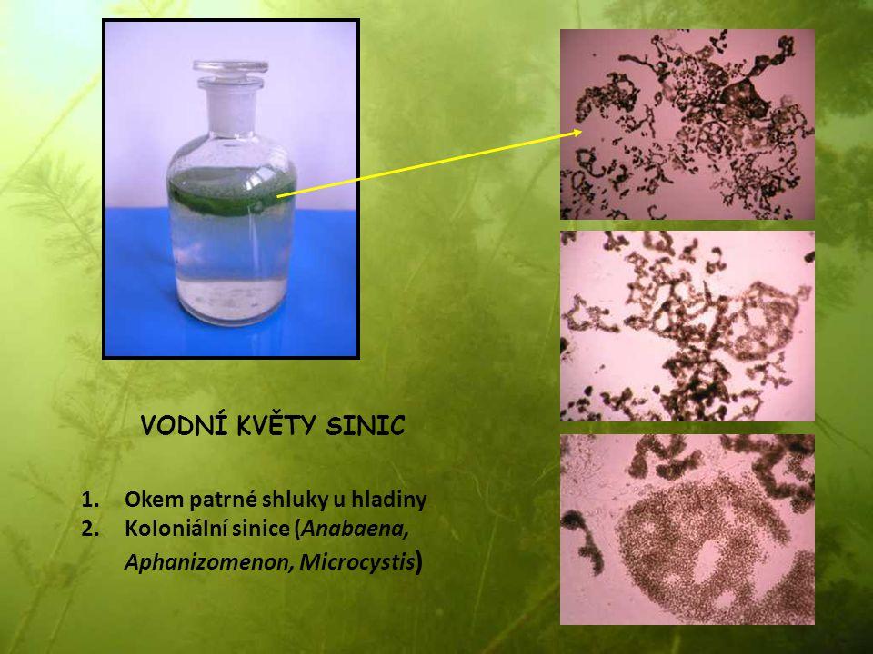 VODNÍ KVĚTY SINIC 1.Okem patrné shluky u hladiny 2.Koloniální sinice (Anabaena, Aphanizomenon, Microcystis )