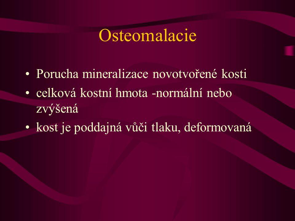 Osteomalacie Porucha mineralizace novotvořené kosti celková kostní hmota -normální nebo zvýšená kost je poddajná vůči tlaku, deformovaná