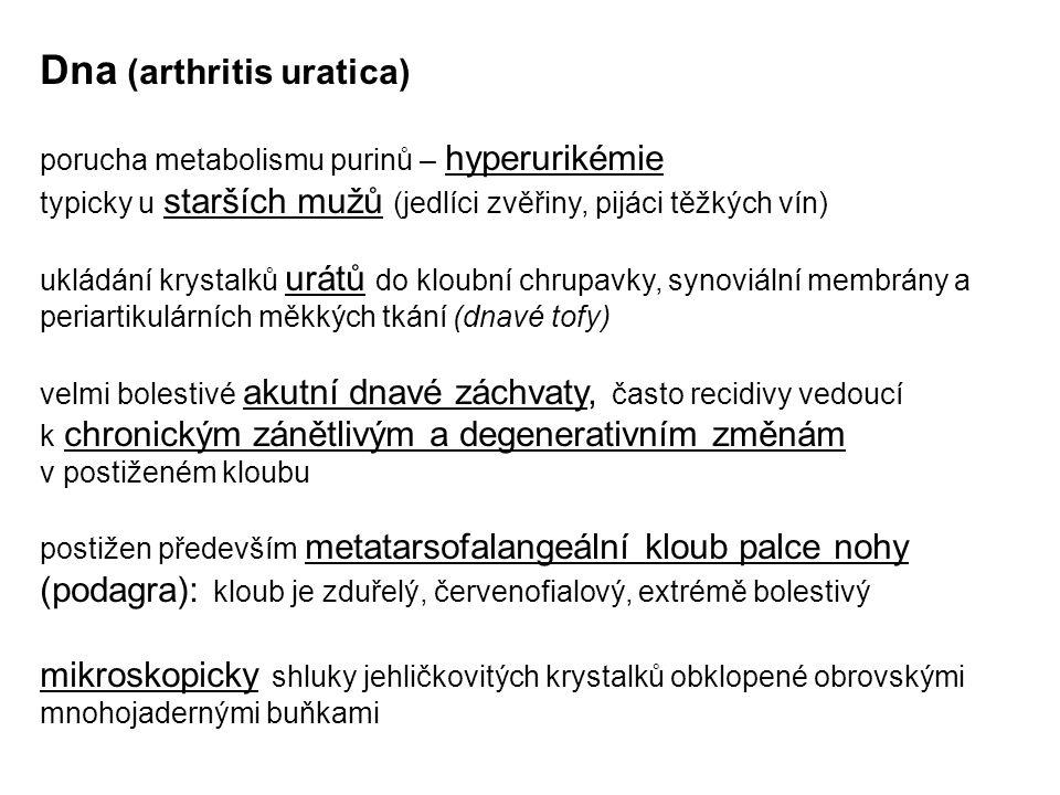 Dna (arthritis uratica) porucha metabolismu purinů – hyperurikémie typicky u starších mužů (jedlíci zvěřiny, pijáci těžkých vín) ukládání krystalků ur