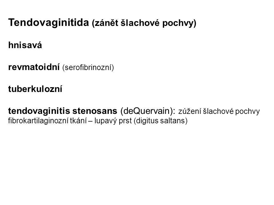 Tendovaginitida (zánět šlachové pochvy) hnisavá revmatoidní (serofibrinozní) tuberkulozní tendovaginitis stenosans (deQuervain): zúžení šlachové pochv