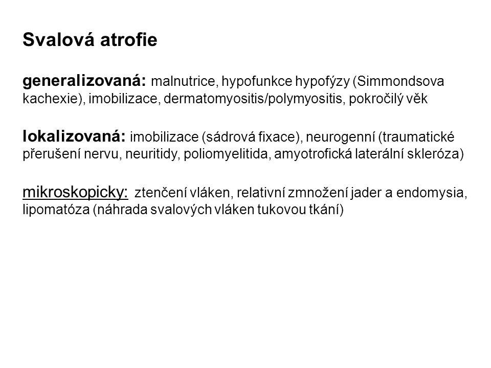 Svalová atrofie generalizovaná: malnutrice, hypofunkce hypofýzy (Simmondsova kachexie), imobilizace, dermatomyositis/polymyositis, pokročilý věk lokal