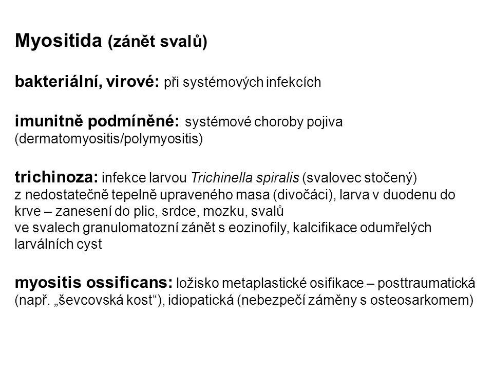 Myositida (zánět svalů) bakteriální, virové: při systémových infekcích imunitně podmíněné: systémové choroby pojiva (dermatomyositis/polymyositis) tri