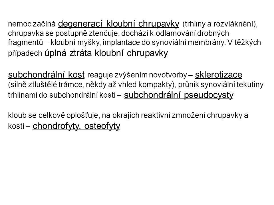 Nespecifická bakteriální artritida nejč.
