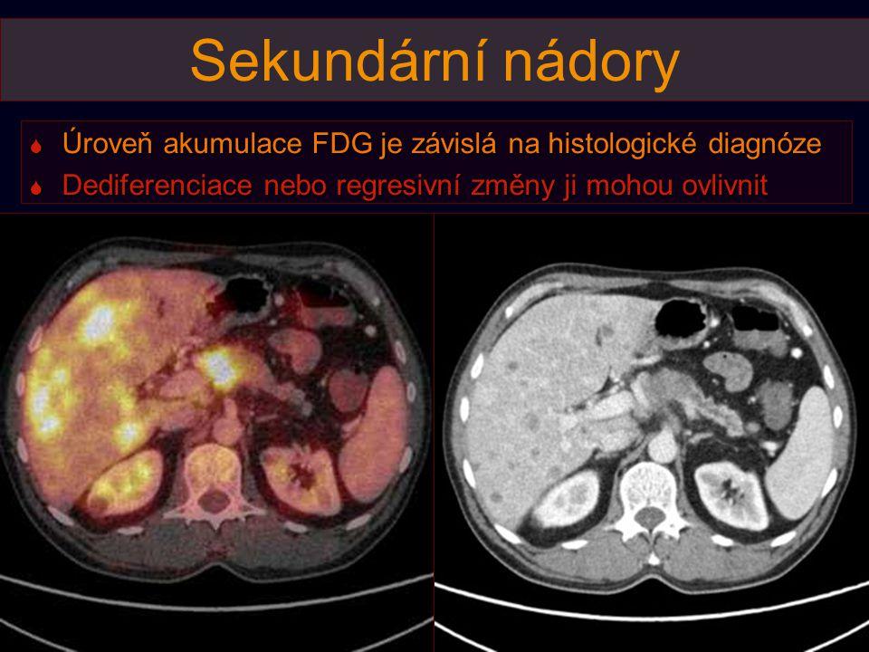 Sekundární nádory  Úroveň akumulace FDG je závislá na histologické diagnóze  Dediferenciace nebo regresivní změny ji mohou ovlivnit