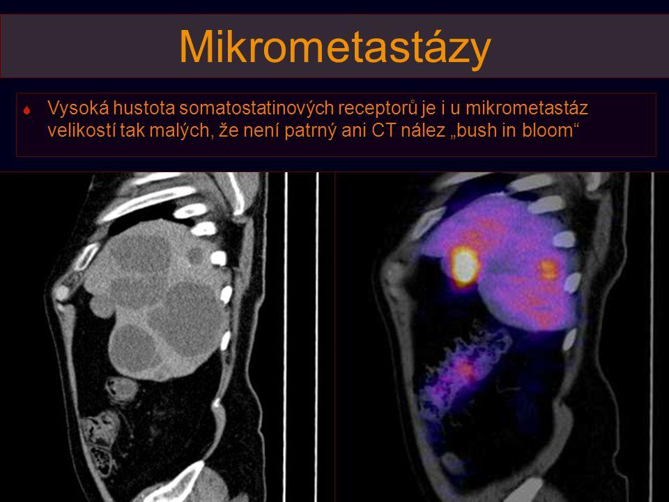 """Mikrometastázy  Vysoká hustota somatostatinových receptorů je i u mikrometastáz velikostí tak malých, že není patrný ani CT nález """"bush in bloom"""""""