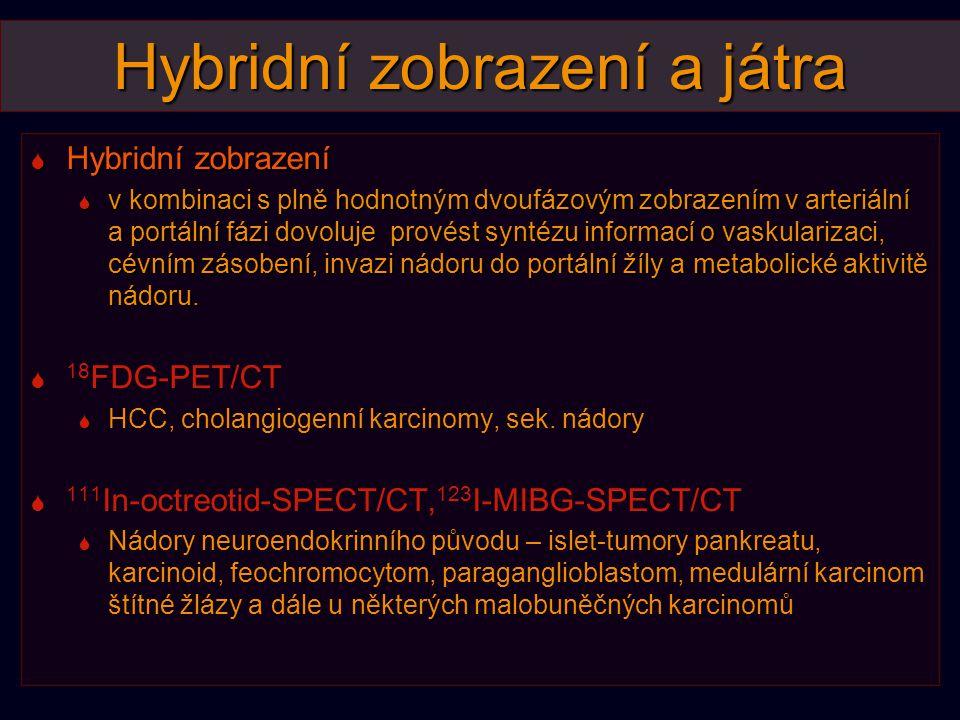Hybridní zobrazení a játra  Hybridní zobrazení  v kombinaci s plně hodnotným dvoufázovým zobrazením v arteriální a portální fázi dovoluje provést sy