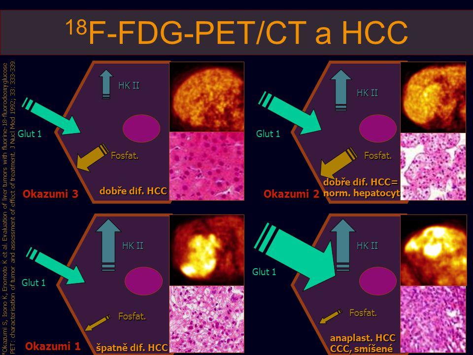 18 F-FDG-PET/CT a HCC dobře dif. HCC dobře dif. HCC= norm. hepatocyt špatně dif. HCC anaplast. HCC CCC, smíšené Glut 1 HK II Fosfat.Fosfat. Fosfat. Fo