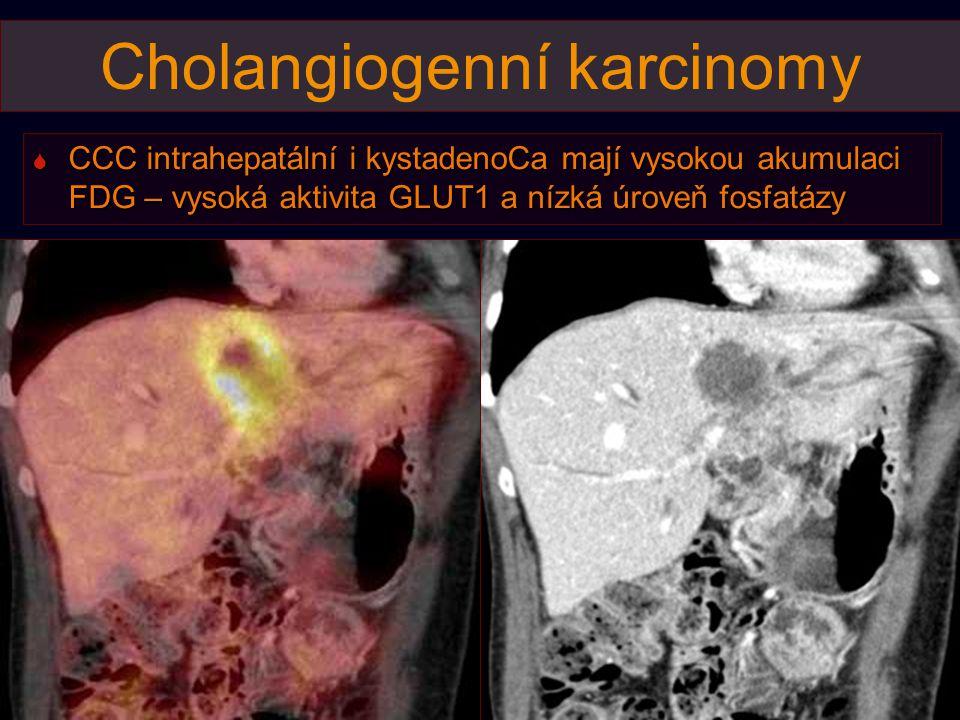 Cholangiogenní karcinomy  CCC intrahepatální i kystadenoCa mají vysokou akumulaci FDG – vysoká aktivita GLUT1 a nízká úroveň fosfatázy