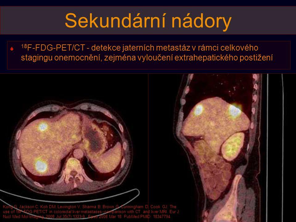 Sekundární nádory  18 F-FDG-PET/CT - detekce jaterních metastáz v rámci celkového stagingu onemocnění, zejména vyloučení extrahepatického postižení K