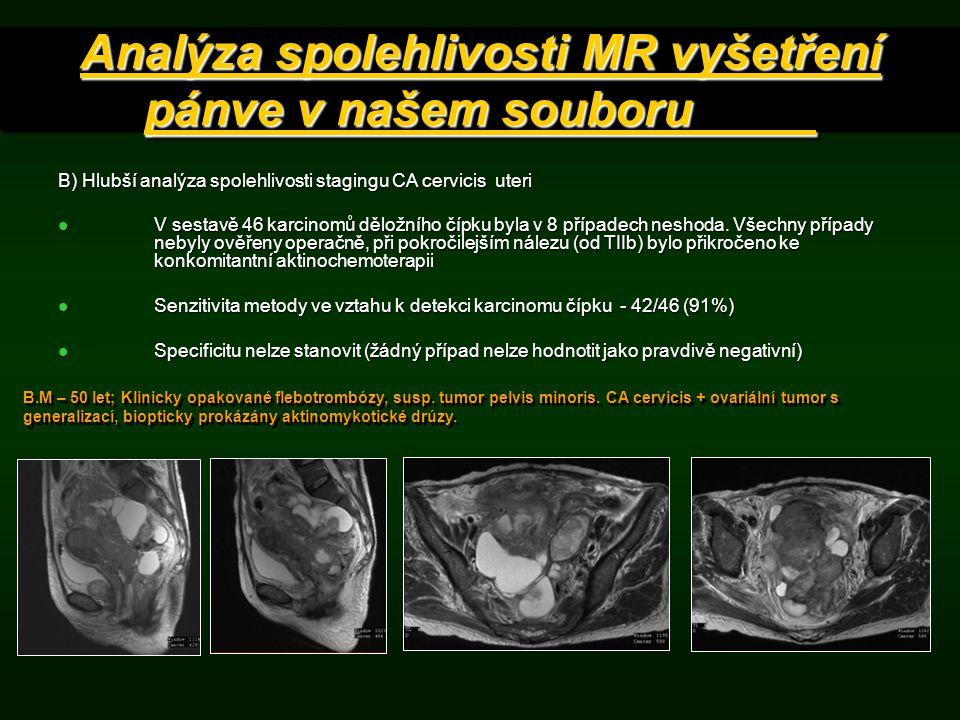 B) Hlubší analýza spolehlivosti stagingu CA cervicis uteri V sestavě 46 karcinomů děložního čípku byla v 8 případech neshoda. Všechny případy nebyly o