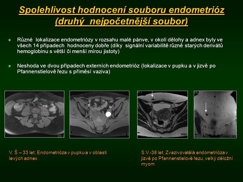 Spolehlivost hodnocení souboru endometrióz (druhý nejpočetnější soubor) Různé lokalizace endometriózy v rozsahu malé pánve, v okolí dělohy a adnex byly ve všech 14 případech hodnoceny dobře (díky signální variabilitě různě starých derivátů hemoglobinu s větší či menší mírou jistoty) Různé lokalizace endometriózy v rozsahu malé pánve, v okolí dělohy a adnex byly ve všech 14 případech hodnoceny dobře (díky signální variabilitě různě starých derivátů hemoglobinu s větší či menší mírou jistoty) Neshoda ve dvou případech externích endometrióz (lokalizace v pupku a v jizvě po Pfannenstielově řezu s příměsí vaziva) Neshoda ve dvou případech externích endometrióz (lokalizace v pupku a v jizvě po Pfannenstielově řezu s příměsí vaziva) V.