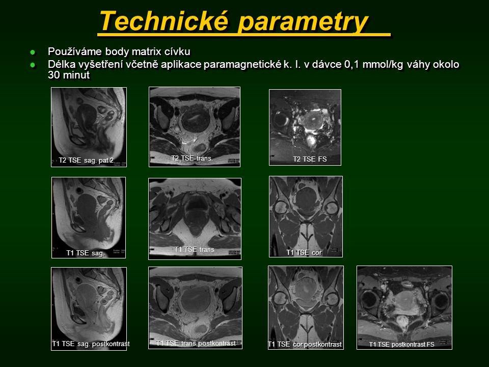 Technické parametry Používáme body matrix cívku Používáme body matrix cívku Délka vyšetření včetně aplikace paramagnetické k. l. v dávce 0,1 mmol/kg v