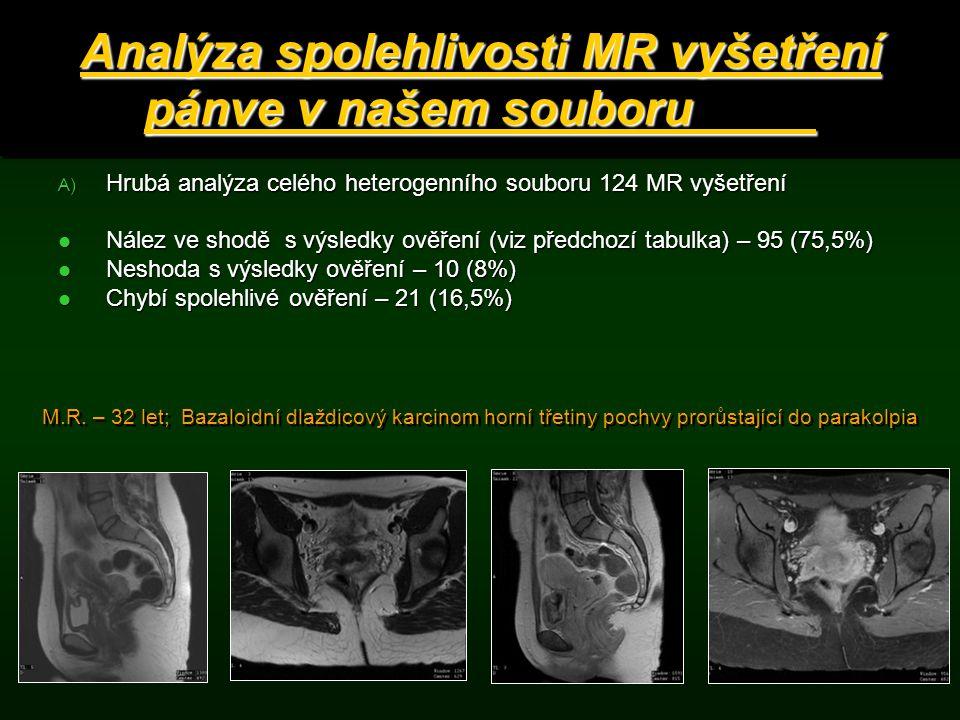 Analýza spolehlivosti MR vyšetření pánve v našem souboru A) Hrubá analýza celého heterogenního souboru 124 MR vyšetření Nález ve shodě s výsledky ověř