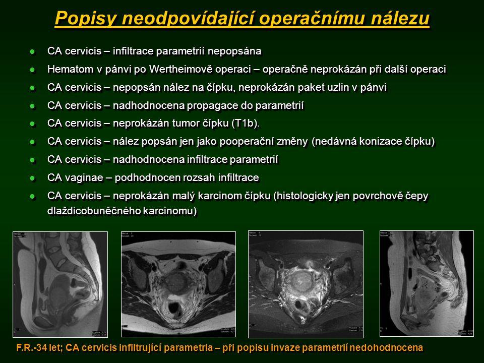 Popisy neodpovídající operačnímu nálezu CA cervicis – infiltrace parametrií nepopsána CA cervicis – infiltrace parametrií nepopsána Hematom v pánvi po Wertheimově operaci – operačně neprokázán při další operaci Hematom v pánvi po Wertheimově operaci – operačně neprokázán při další operaci CA cervicis – nepopsán nález na čípku, neprokázán paket uzlin v pánvi CA cervicis – nepopsán nález na čípku, neprokázán paket uzlin v pánvi CA cervicis – nadhodnocena propagace do parametrií CA cervicis – nadhodnocena propagace do parametrií CA cervicis – neprokázán tumor čípku (T1b).