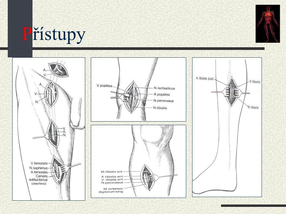 Dělení infekce Szilágyi (1972) I - kůže II – kůže + podkoží III – cévní protéza Samson I - kůže II – kůže + podkoží III – cévní protéza IV – anastomóza, krvácení, septikémie
