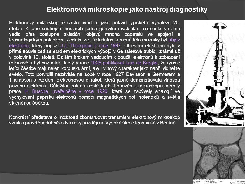 Transmisní elektronový mikroskop Transmisní elektronový mikroskop je možné popsat jako složité technické zařízení, které umožňuje pozorování preparátů do tloušťky 100 nm při vysokém zvětšení a s velkou rozlišovací schopností.