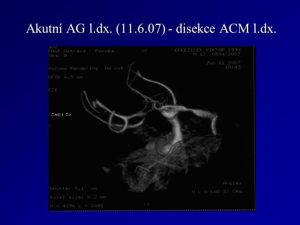 Akutní AG l.dx. (11.6.07) - disekce ACM l.dx. Akutní AG l.dx. (11.6.07) - disekce ACM l.dx.