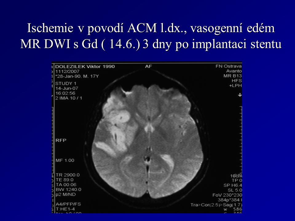 Ischemie v povodí ACM l.dx., vasogenní edém MR DWI s Gd ( 14.6.) 3 dny po implantaci stentu