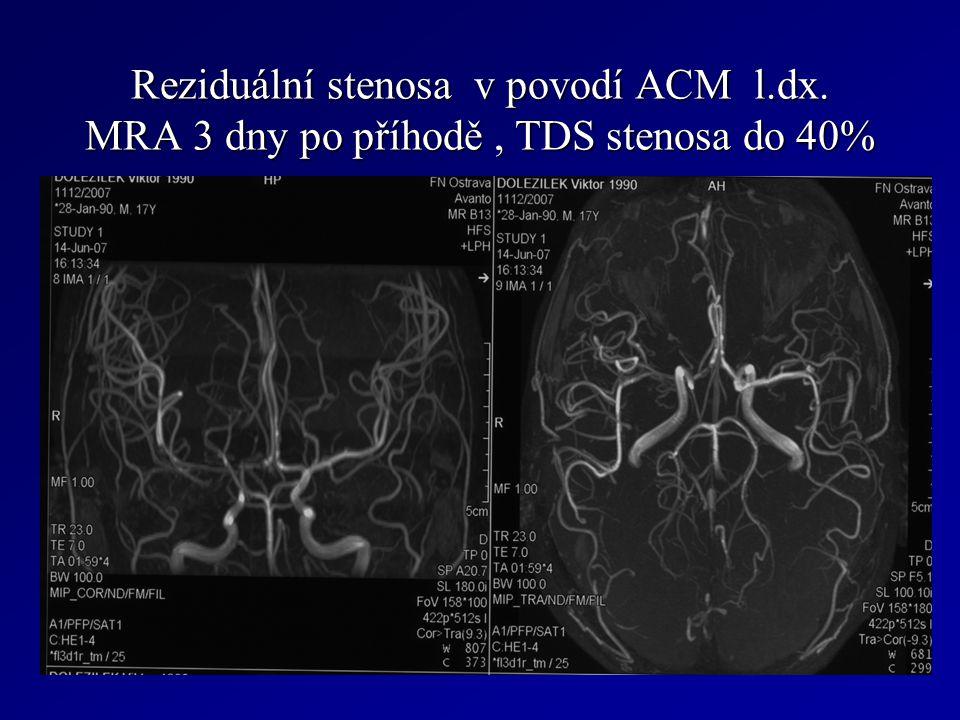 Reziduální stenosa v povodí ACM l.dx.