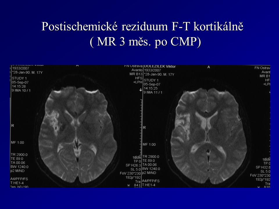 Postischemické reziduum F-T kortikálně ( MR 3 měs. po CMP)