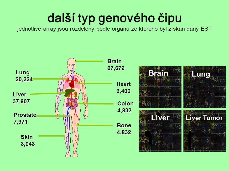 další typ genového čipu jednotlivé array jsou rozděleny podle orgánu ze kterého byl získán daný ESTBrain67,679Heart9,400 Liver37,807 Colon4,832 Prosta