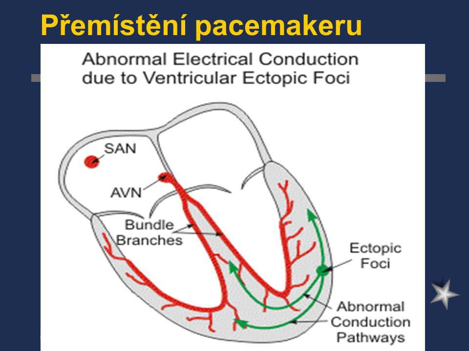 Poruchy srdečního rytmu poruchy vedení impulsu AV-blokáda-I.stupeň-jen prodloužení převodu, II.stupeň-ne všechny vzruchy se převedou(periodicita-Wenkebach,Mobitz), III.stupeň-žádný vzruch se nepřevede SA-blokáda raménkové blokády- pravé,levé,hemiblok prodloužený Q-T…arytmie torsade-de- pointes,synkopa