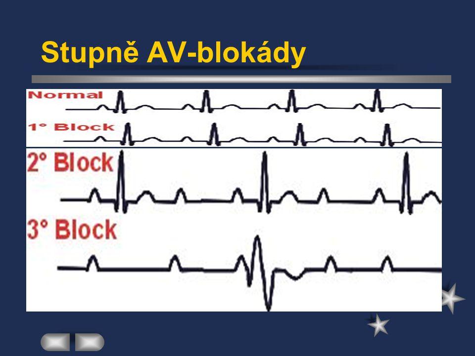 Kardiostimulace - dělení Dočasná: u symptomatických bradykardií k peroperačnímu zajištění rizikových nemocných asymptomatických ke zvládnutí akutních poruch stimulační soustavy trvalého stimulátoru Trvalá: užití kardiostimulátorů implantovaných do podkoží (nejčastěji do podklíčkové krajiny) elektroda je zavedena do oblasti srdečního hrotu PK nitrožilním přístupem