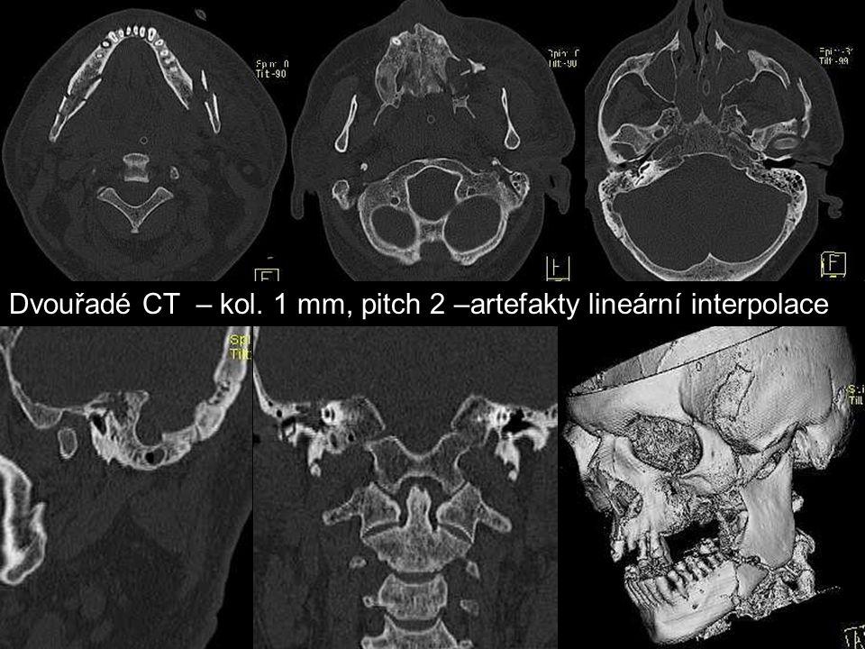 Dvouřadé CT – kol. 1 mm, pitch 2 –artefakty lineární interpolace