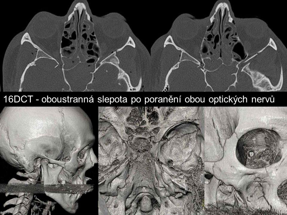 16DCT - oboustranná slepota po poranění obou optických nervů