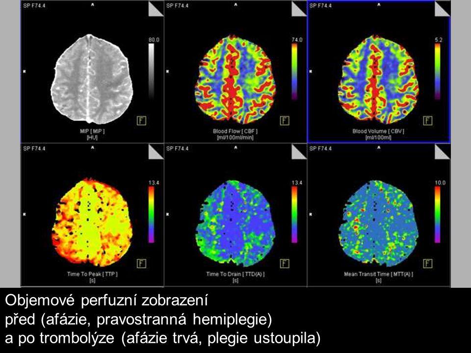 Objemové perfuzní zobrazení před (afázie, pravostranná hemiplegie) a po trombolýze (afázie trvá, plegie ustoupila)
