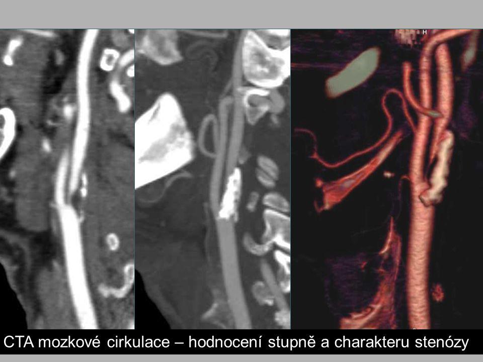 CTA mozkové cirkulace – hodnocení stupně a charakteru stenózy