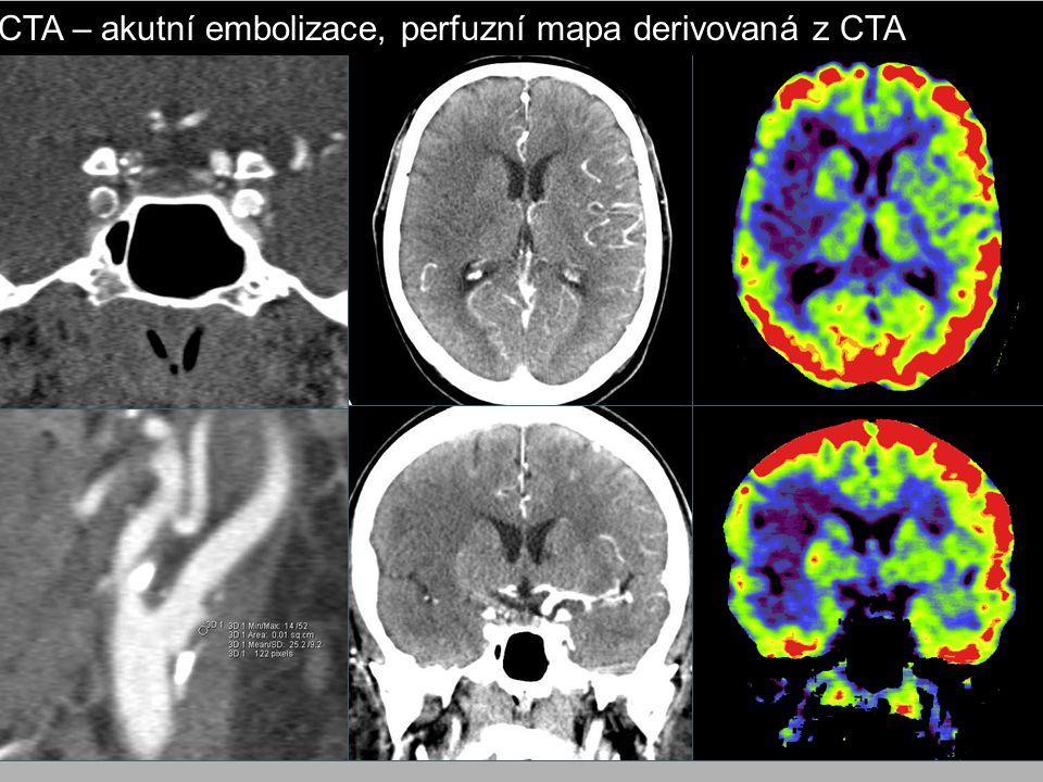 CTA – akutní embolizace, perfuzní mapa derivovaná z CTA