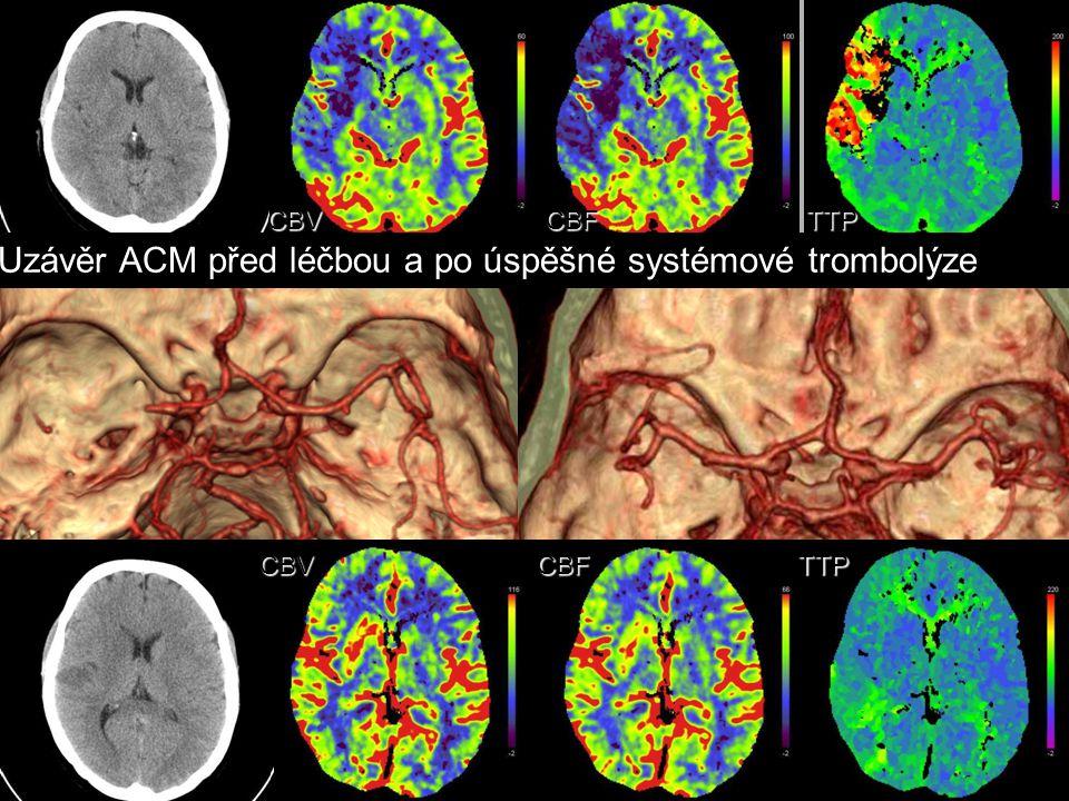 CBVCBFTTP CBVCBFTTP Uzávěr ACM před léčbou a po úspěšné systémové trombolýze