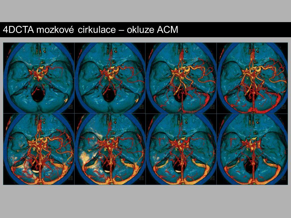4DCTA mozkové cirkulace – okluze ACM