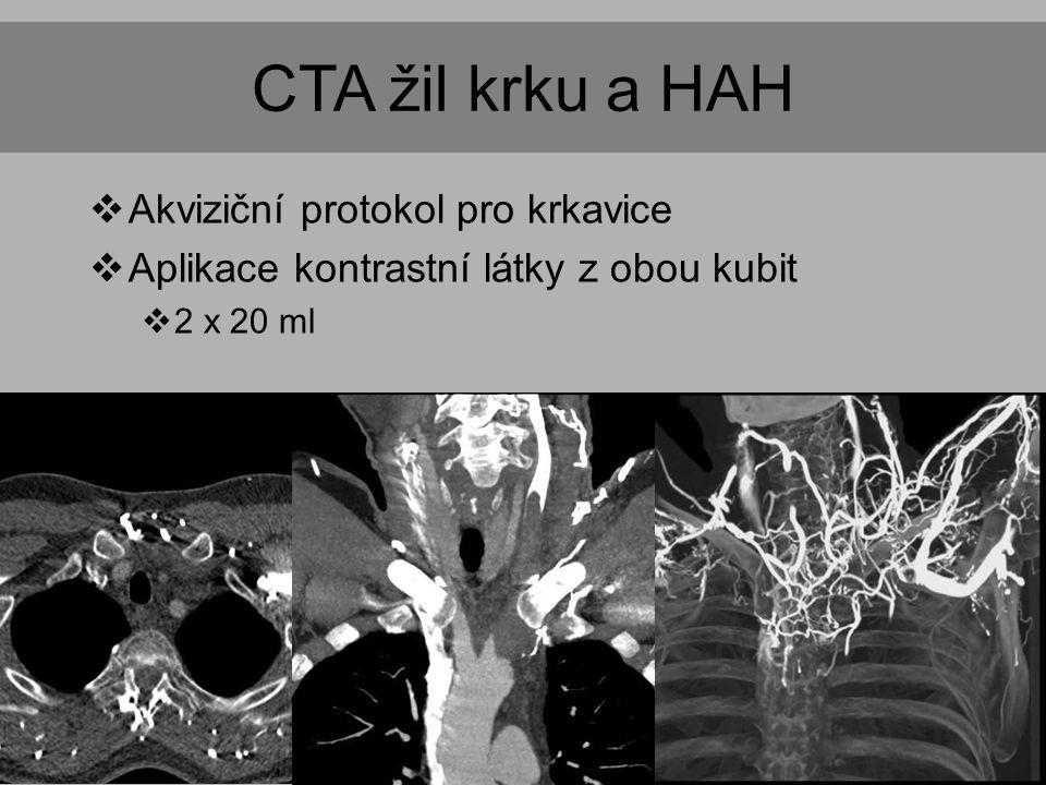 CTA žil krku a HAH  Akviziční protokol pro krkavice  Aplikace kontrastní látky z obou kubit  2 x 20 ml