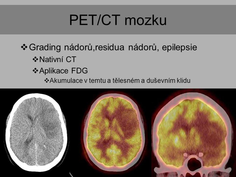 PET/CT mozku  Grading nádorů,residua nádorů, epilepsie  Nativní CT  Aplikace FDG  Akumulace v temtu a tělesném a duševním klidu