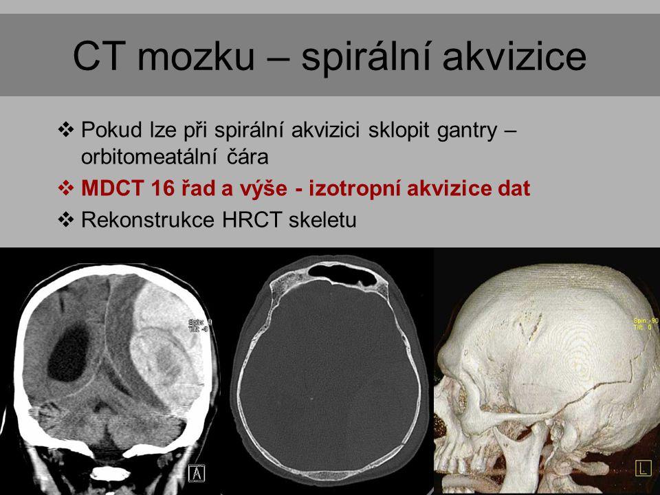 CT mozku – spirální akvizice  Pokud lze při spirální akvizici sklopit gantry – orbitomeatální čára  MDCT 16 řad a výše - izotropní akvizice dat  Rekonstrukce HRCT skeletu