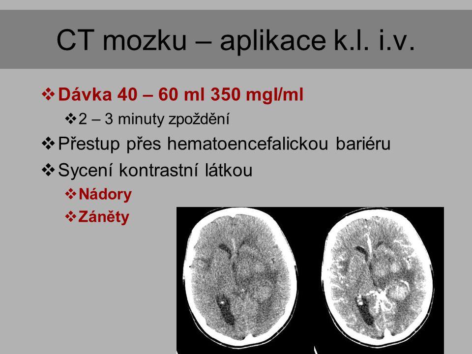 CT angiografie  Izotropní zobrazení  Voxel o hraně do 1 mm  Rozsah vyšetření  oblouk aorty  krk  hlava  Aplikace kontrastní látky  60 – 80 ml  4 – 5 ml/s  Automatické spuštění akvizice  ascendentní aorta