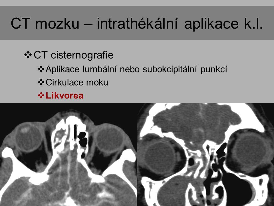 CT mozku – intrathékální aplikace k.l.