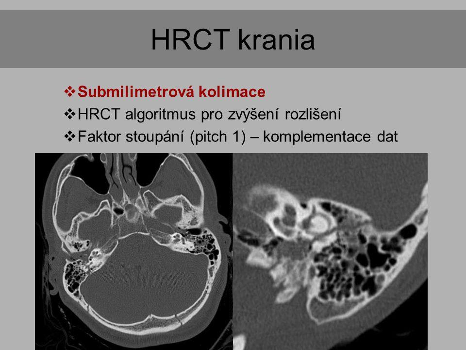 HRCT krania  Submilimetrová kolimace  HRCT algoritmus pro zvýšení rozlišení  Faktor stoupání (pitch 1) – komplementace dat  Indikace  Spánková kost  Poranění skeletu  Záněty a nádory neuro- i splanchnokrania  Vývojové poruchy dentice (dentální CT)