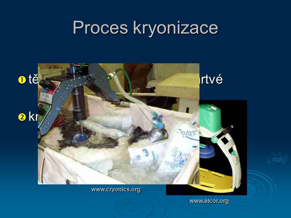 Proces kryonizace  tělo musí být prohlášeno za mrtvé  kryonická jednotka www.alcor.org www.cryonics.org