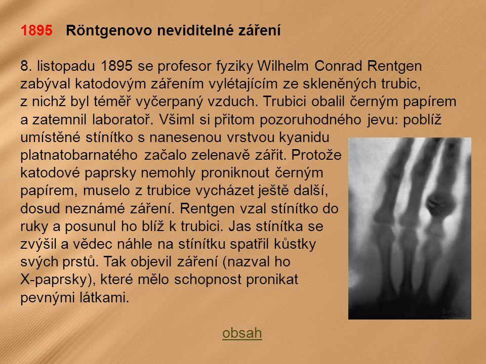 1895 Röntgenovo neviditelné záření 8.