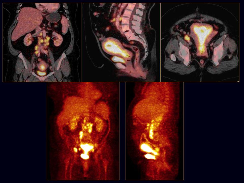 Restaging po terapii Zhodnocení účinku terapie v léčebné dávce – nejčastěji u nádorů cervixu Inoperabilní adenokarcinom původně s infiltrací parametrií a vzdálenými metastázami