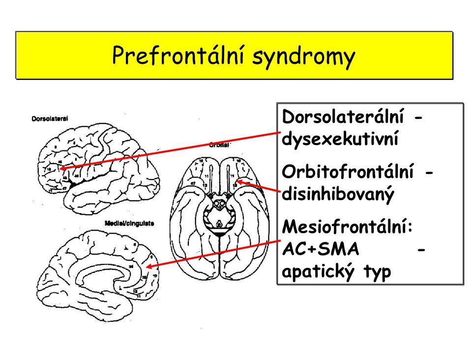 Prefrontální syndromy Dorsolaterální - dysexekutivní Orbitofrontální - disinhibovaný Mesiofrontální: AC+SMA - apatický typ